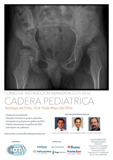 Cadera Pediátrica